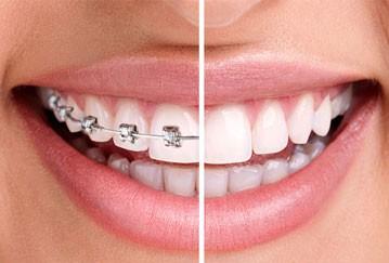 Tandreglering för de perfekta tänderna